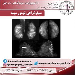 سونوگرافی تومور سینه