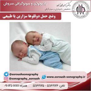 وضع حمل دوقلوها سزارین یا طبیعی