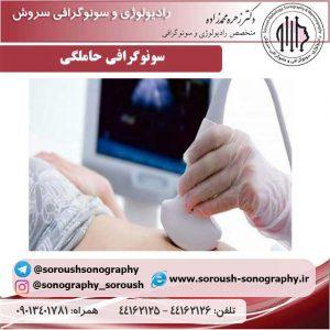 سونوگرافی-حاملگی