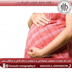 سوالات متداول بارداری خارج از رحم