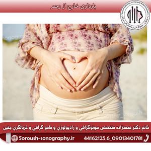 بارداری خارج از رحم