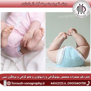 روش تعیین جنسیت قبل از بارداری