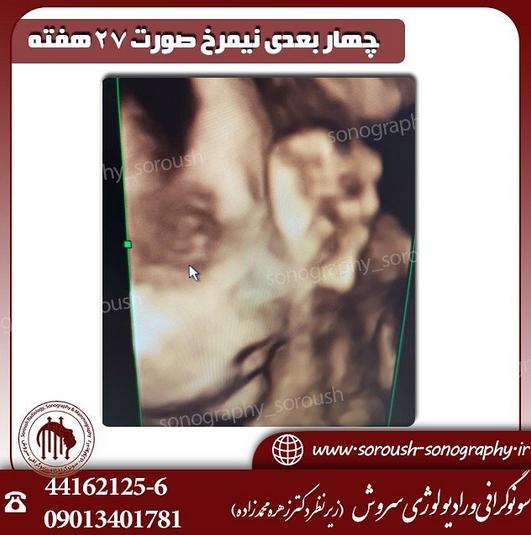 سونوگرافی دوران بارداری